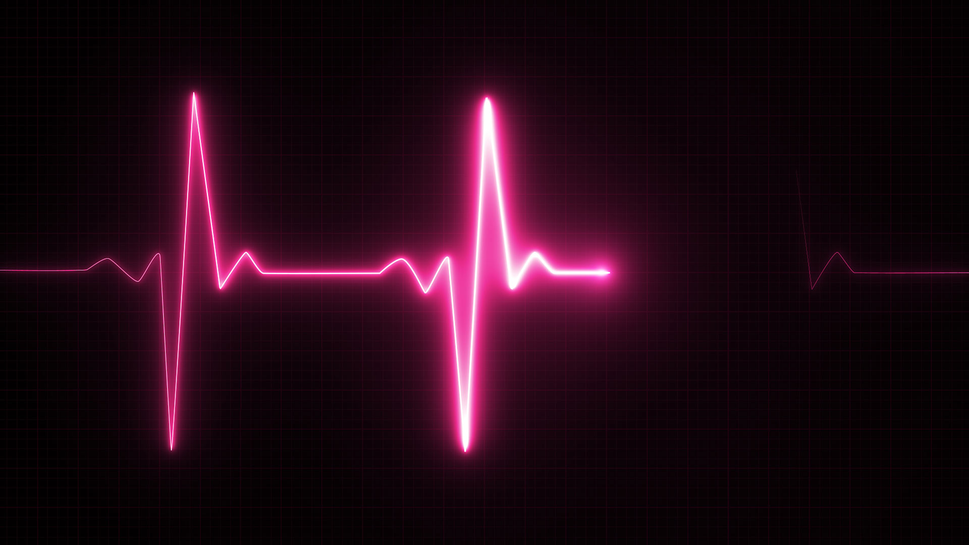 pink heart rate on monitor